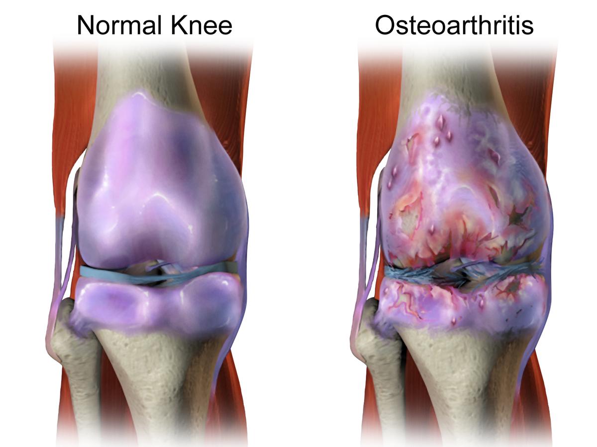 Osteoarthritis 2