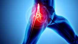 Hip Joint Pain Treatment