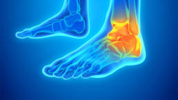 Manage Foot and Ankle Pain