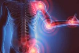 Joint Pain Supplements